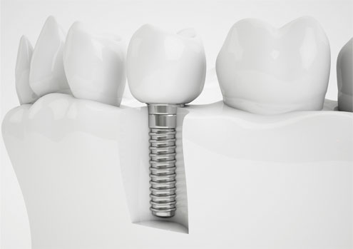 Implantes dentales carga inmediata mondejar