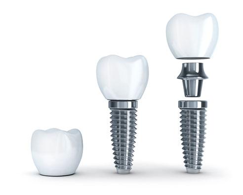 Implantes dentales mondejar
